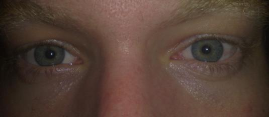 Marcus Mårtensson Freshlook Colorblends True Sapphire large
